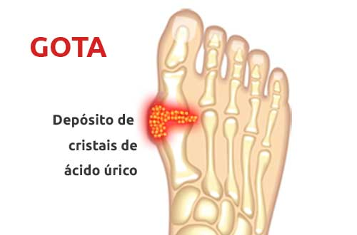 reumatologista clinica