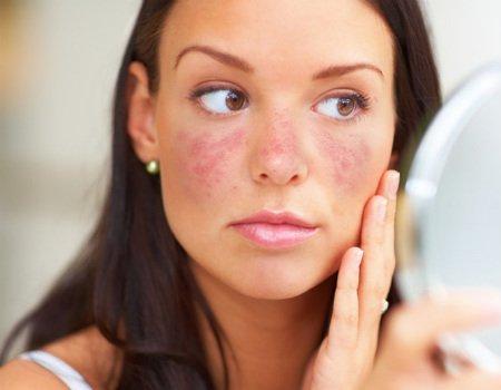 A exposição ao Sol ativa o Lúpus? | Quíron | Clínica de Reumatologia